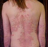 Psoriasis del cuero cabelludo y dermatitis seborreica: ¿Cuál es la diferencia?