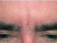 Atopichesky la dermatitis la profiláctica a los niños
