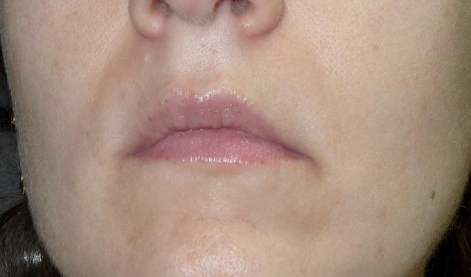 Piel escamosa facial seca