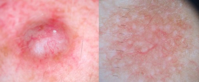 La como curar la piel en dermatitis