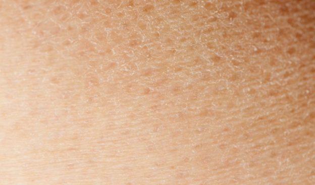 Que galletas son posibles al niño a atopicheskom la dermatitis