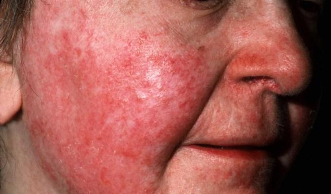 Como curar la dermatitis en la piel