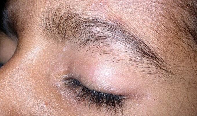 Atopichesky la dermatitis bilioso