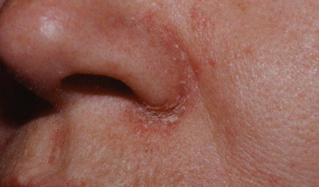 La psoriasis la enfermedad útil