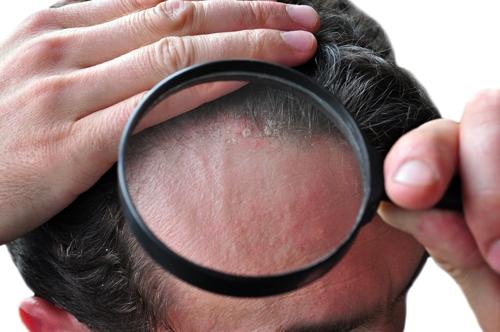 Tipos de dermatitis en el cuero cabelludo